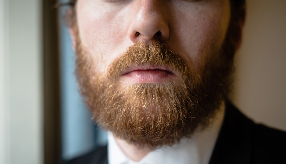 Before And After Photos Beard And Eyebrow Transplants In Philadelphia