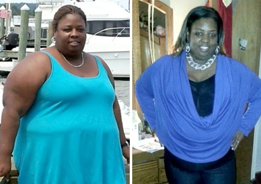 Before After Bariatric Surgery Three Inspirational Weight Loss